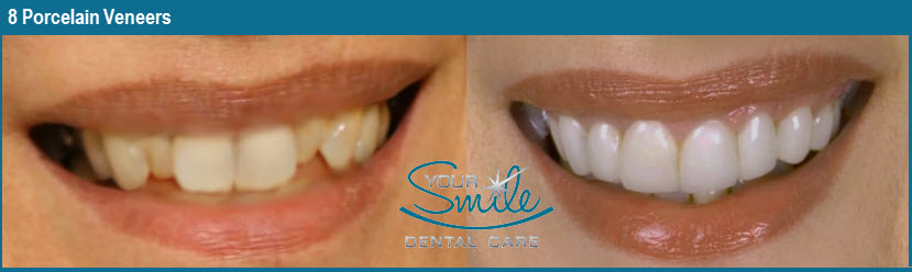Porcelain Veneers – Your Smile Dental Care