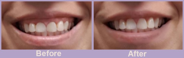 gummy-smile-before-and-after
