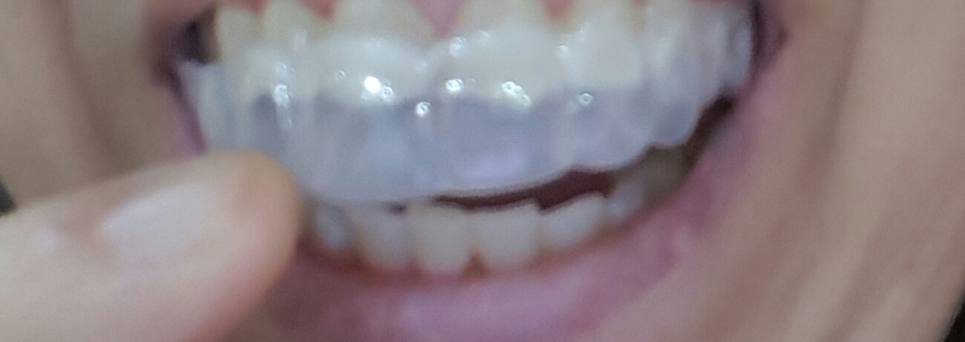 Tips for invisalign invisible braces your smile dental care solutioingenieria Images